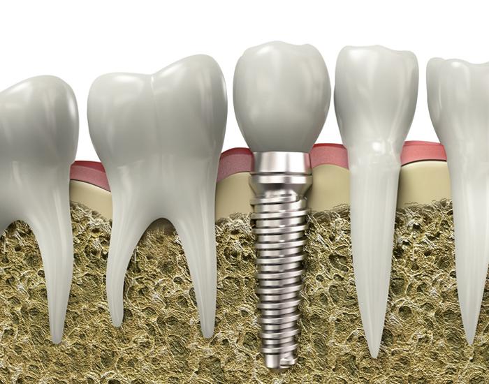 dental implants in ne calgary
