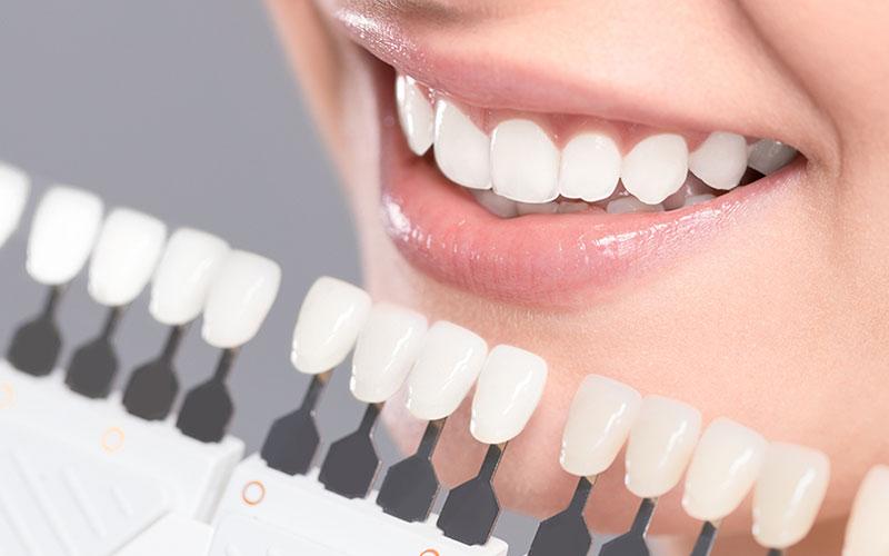 teeth whitening in ne calgary