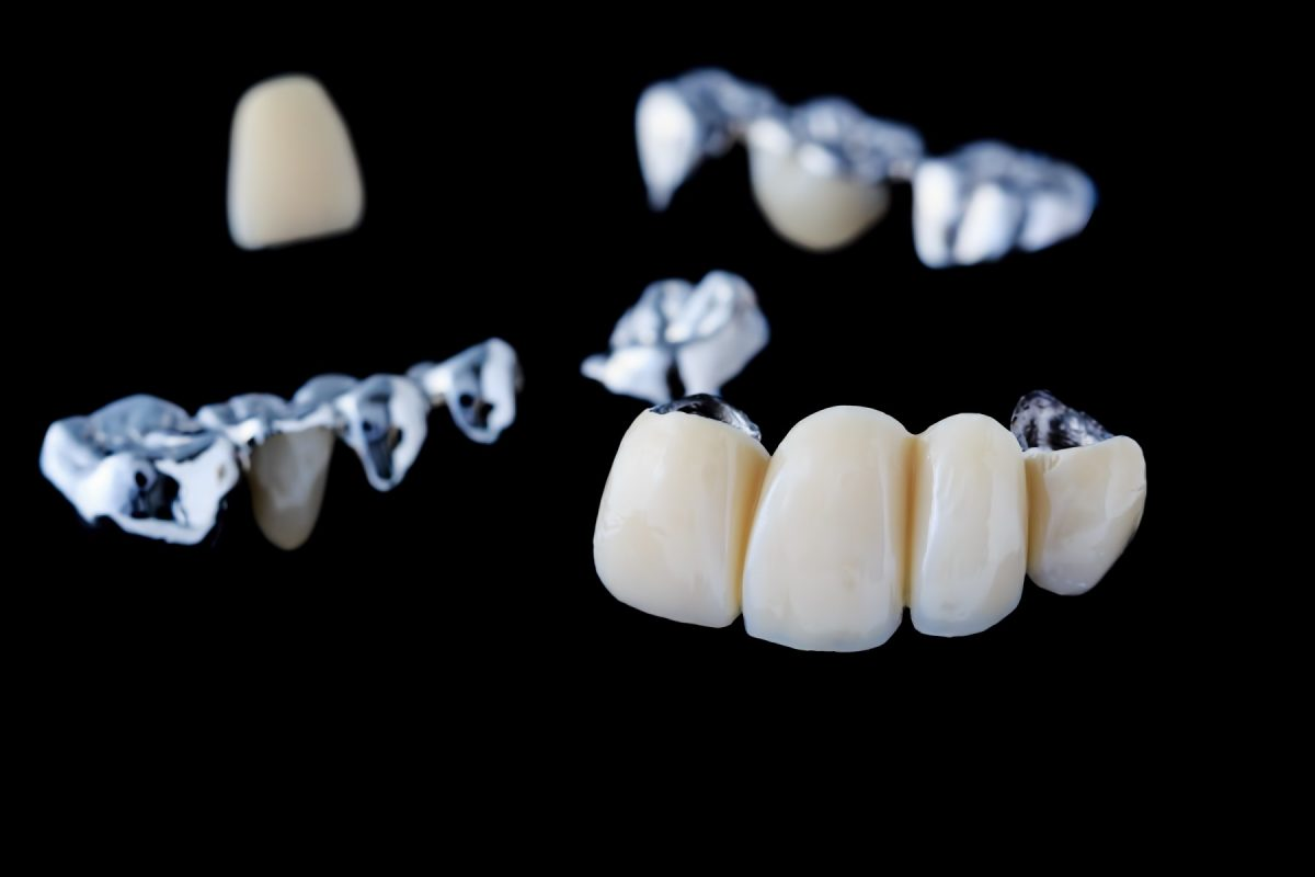 what-goes-into-the-cost-of-dental-bridges